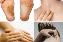 To get rid of skin diseases