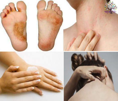 To get rid of skin diseases