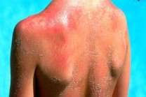 Color to be black, fungal infections, for problems like sunburn, simple resort