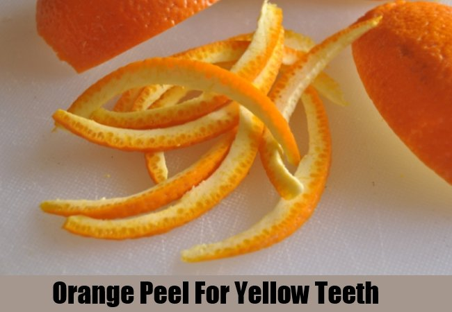 household  remedies for yellow teeth