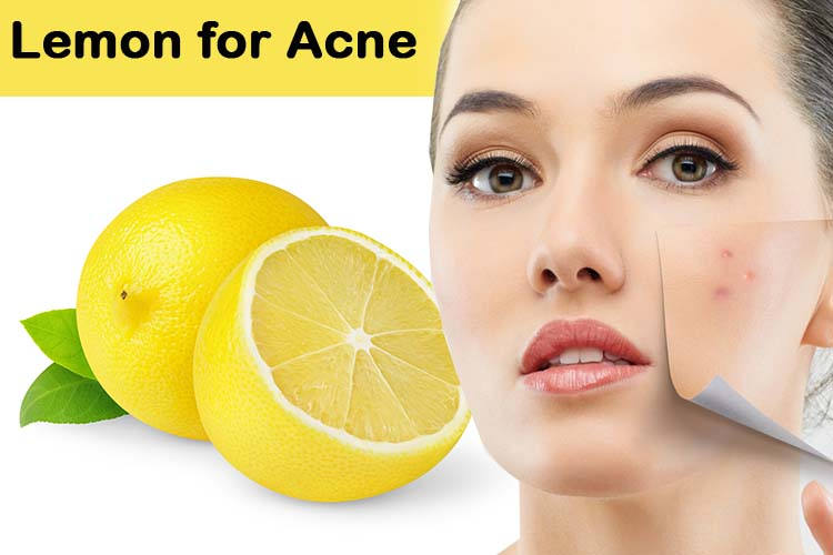 Lemon-for-Acne (1)