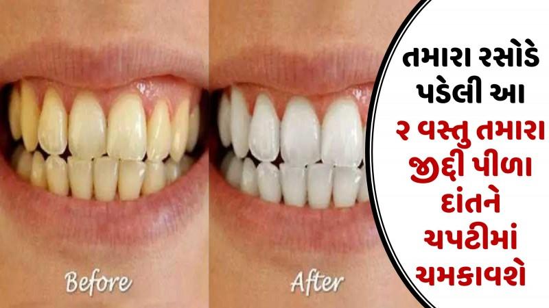 તમારા રસોડે પડેલી આ ૨ વસ્તુ તમારા જીદ્દી પીળા દાંતને ચપટીમાં ચમકાવશે