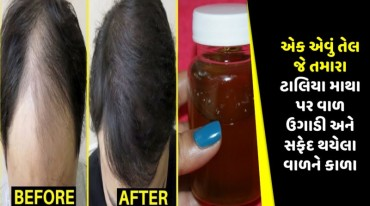 એક એવું તેલ જે તમારા ટાલિયા માથા પર વાળ ઉગાડી અને સફેદ થયેલા વાળને કાળા