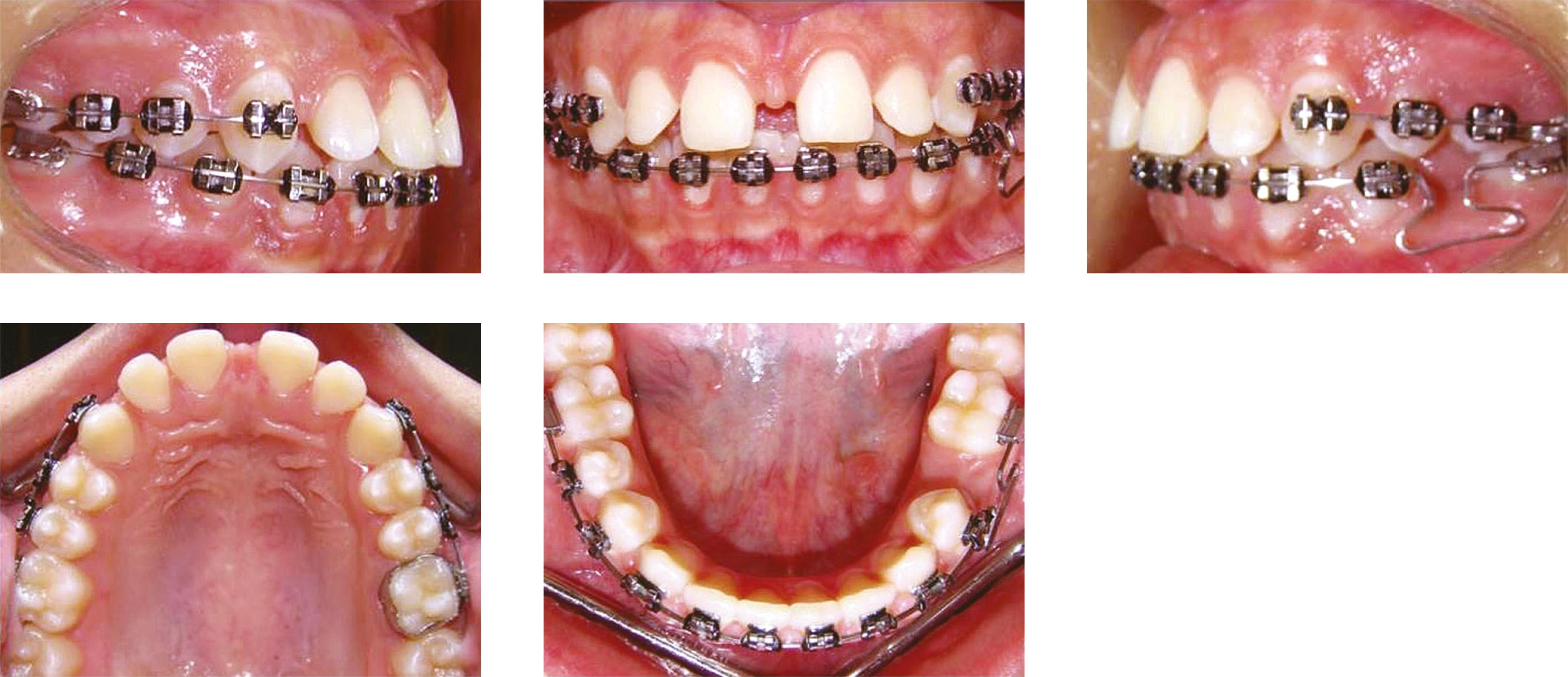 Image result for orthodontics treatment