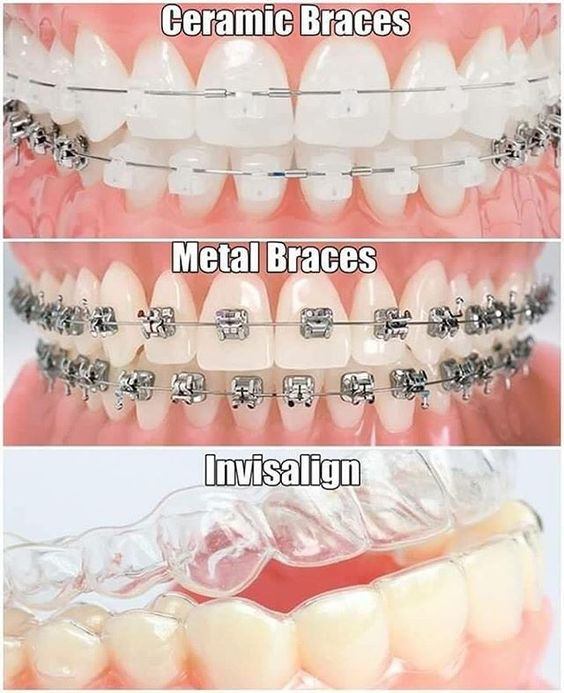 All types of braces available at KDC. Call us on 021 6969428 for more information