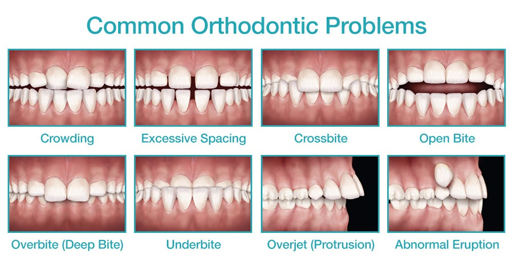 common-orthodontic-problems