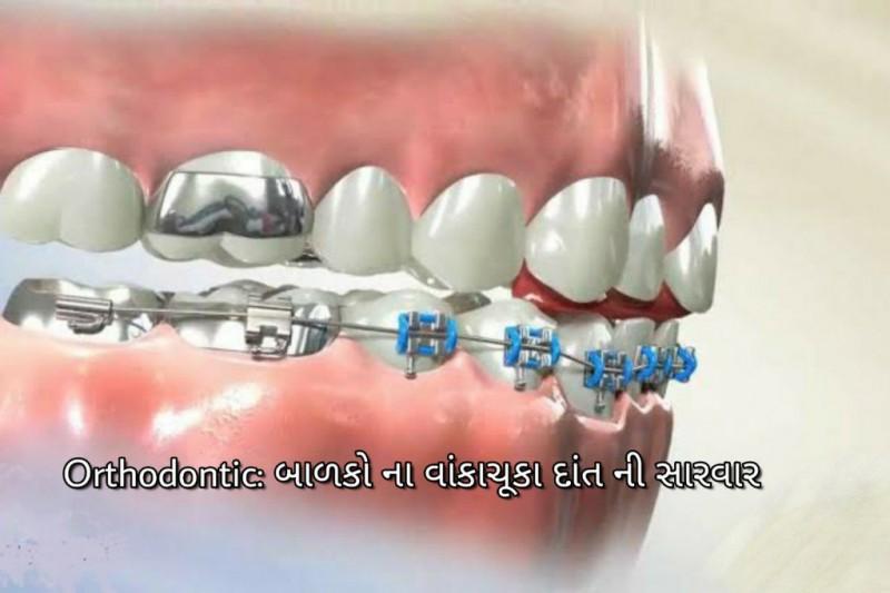 ઓર્થોડોન્ટિકઃ બાળકોના વાંકાચૂકા દાંતની સારવાર