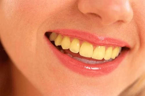 શું તમારા દાંત પીળા છે? સફેદ કરવા અપનાવો આ ઘરેલું ઉપાયો