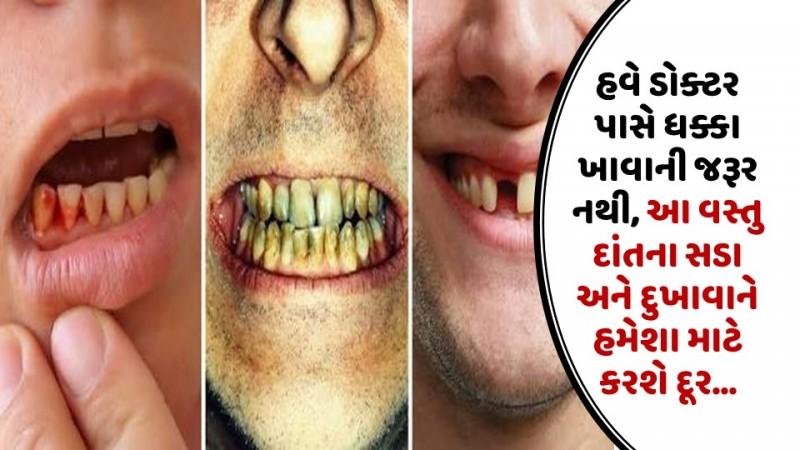 હવે ડોક્ટર પાસે ધક્કા ખાવાની જરૂર નથી, આ વસ્તુ દાંતના સડા અને દુખાવાને હમેશા માટે કરશે દૂર…